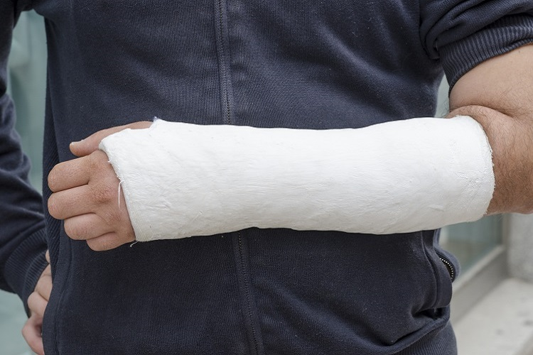 injured man with cast on arm